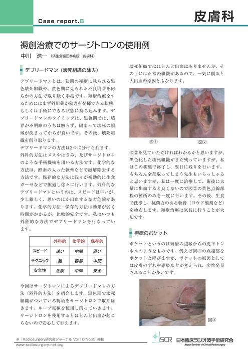 【皮膚科】Case report B 褥瘡治療でのサージトロンの使用例