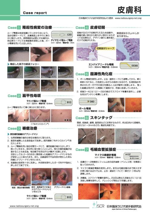 【皮膚科】Case report A 皮膚科症例紹介